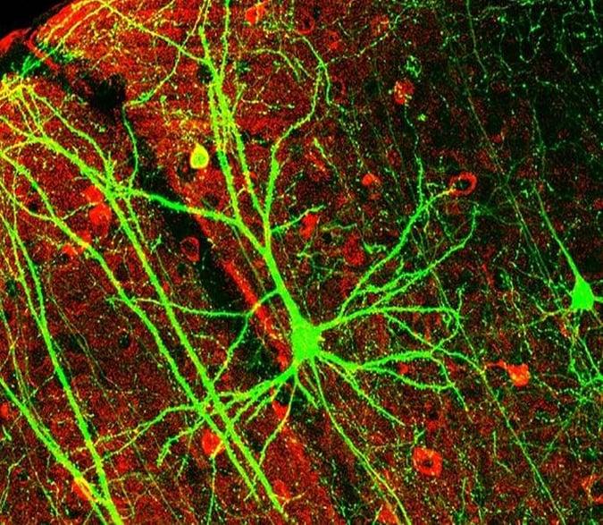 Blog-31-2_Gehirnzellen_2021-03-15
